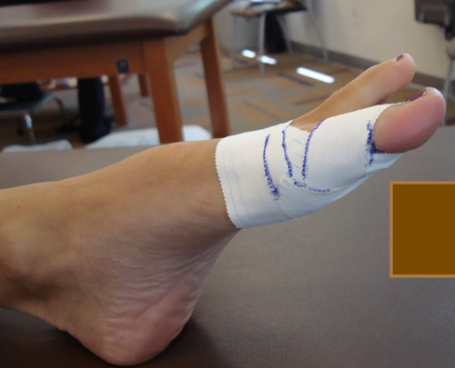 Spica type taping for sesamoid fracture. Photo courtesy of Dr. Amol Saxena