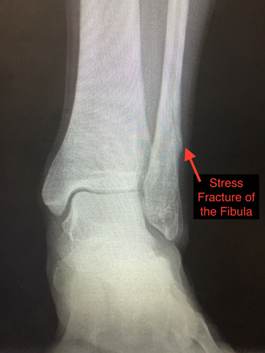 Stress Fractures and their Treatment - Dr. Brian Fullem ...