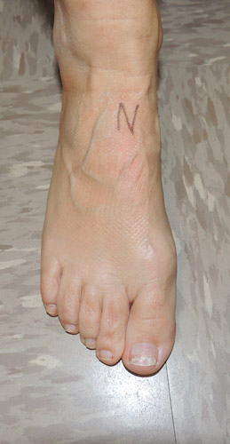 The N spot, the area where the navicular stress fracture will typically hurt.